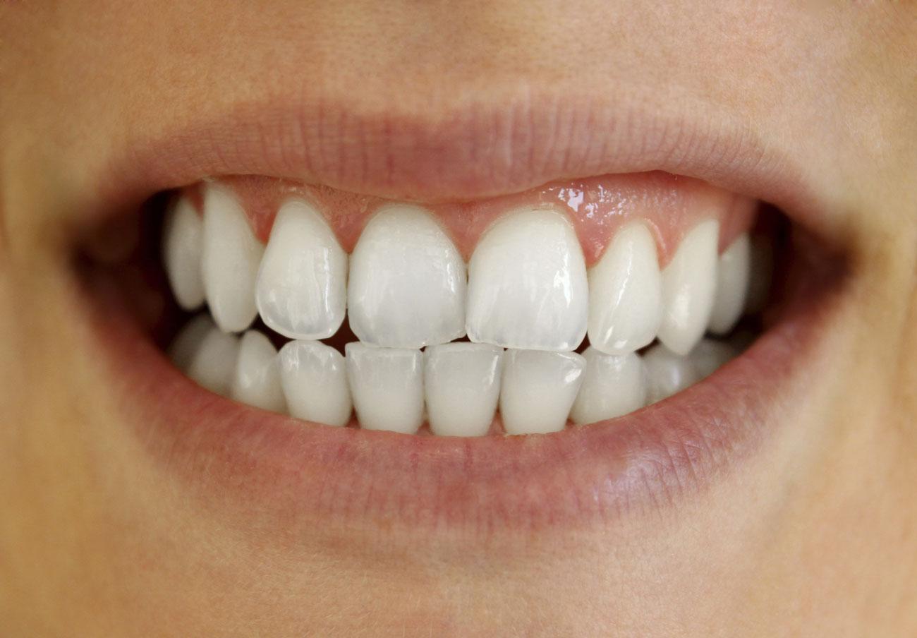 Pour Une Petite Carie Clinique Dentaire Galt