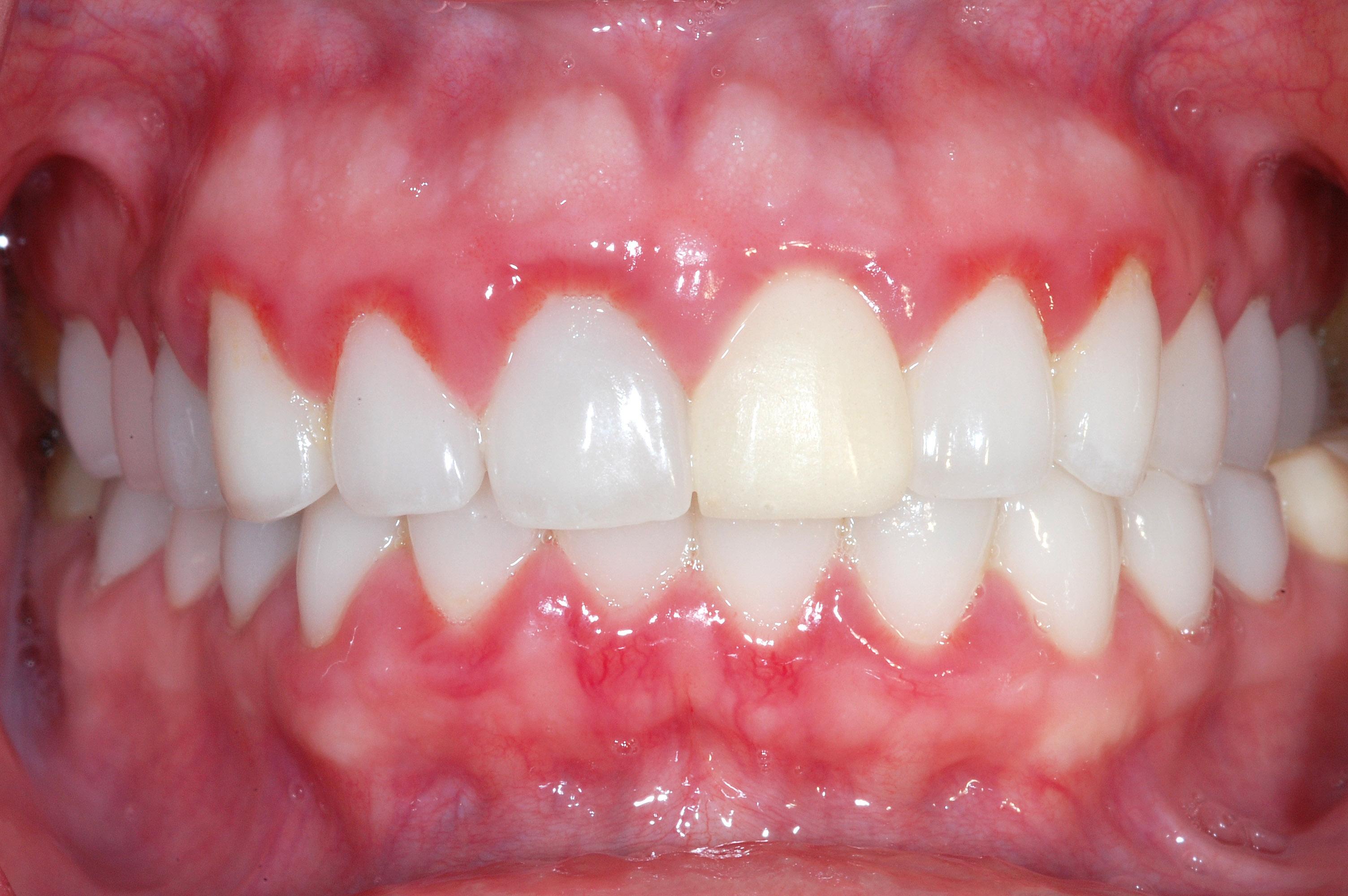 Gencives Et Grossesse Clinique Dentaire Galt